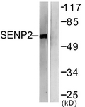 C0366-1 - SENP2