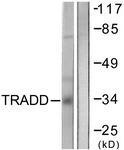 C0377-1 - TRADD