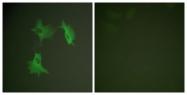C0379-1 - alpha Tubulin / TUBA1A / TUBA3