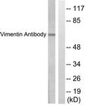 C0390-1 - Vimentin