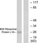 C0391-1 - RPL10