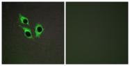 C10001-1 - Anoctamin 9 / TMEM16J