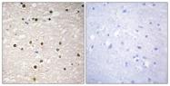 C10080-1 - Tumor protein p73 (TP73)