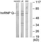 C10139-1 - hnRNP-Q / HNRPQ
