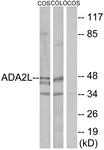 C10181-1 - TADA2L