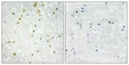 C10201-1 - SNAPC5 / SNAP19