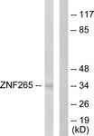 C10218-1 - ZRANB2