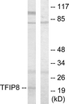 C10226-1 - TNFAIP8