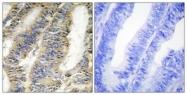 C10265-1 - Tumor necrosis factor (TNF-alpha)