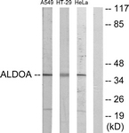 C10268-1 - Aldolase A / ALDOA