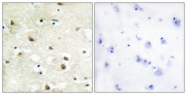 C10296-1 - hnRNP-C1/C2 / HNRNPC