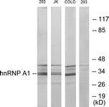 C10319-1 - hnRNP core protein A1 / HNRNPA1