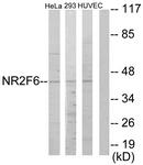 C10336-1 - NR2F6