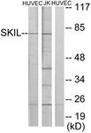 C10353-1 - SKIL / SnoN