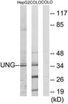 C10355-1 - Uracil-DNA glycosylase (UNG)