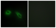 C10365-1 - Glucosidase 2 subunit beta