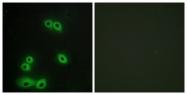 C10386-1 - CD227 / Mucin-1 / MUC1