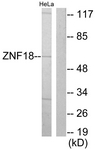 C10394-1 - ZNF18