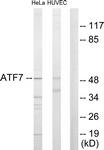 C10409-1 - ATF7