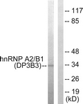 C10452-1 - hnRNP-A2/B1 / HNRNPA2B1