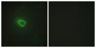 C10459-1 - Tyrosine-protein kinase JAK1