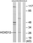 C10555-1 - HOXD12 / HOX4H