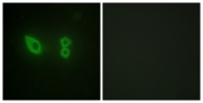 C10558-1 - Alpha-actinin-2 / ACTN2