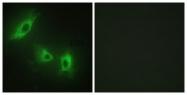 C10576-1 - Activin receptor type 1B / ACVR1B