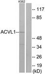 C10579-1 - ACVRL1 / ALK1