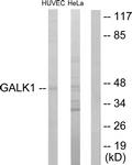 C10680-1 - Galactokinase 1