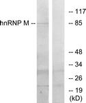 C10693-1 - hnRNP-M / HNRNPM