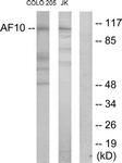 C10737-1 - MLLT10 / AF10