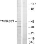 C10761-1 - TMPRSS3