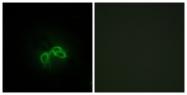 C10782-1 - BLCAP
