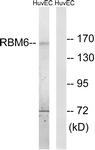 C10790-2 - RBM6