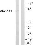 C10800-1 - ADARB1 / ADAR2