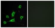 C10805-1 - Retinol-binding protein 5 / RBP5