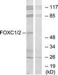 C10937-1 - FOXC1 / FKHL7 / FREAC3