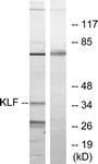C10971-1 - Krueppel-like factor 1 (KLF1)