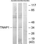 C11006-1 - TNFAIP1 / EDP1