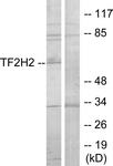 C11010-1 - GTF2H2 / BTF2P44