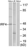 C11070-1 - IRF4