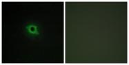 C11181-1 - DAG kinase kappa