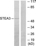 C11204-1 - STEAP3 / TSAP6