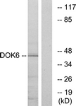 C11230-1 - DOK6 / DOK5L