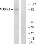 C11249-1 - MARK2