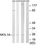 C11256-1 - MOB4A