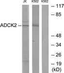 C11266-1 - ADCK2