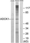 C11274-1 - ADCK1
