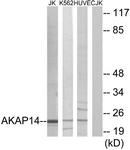 C11279-1 - AKAP14